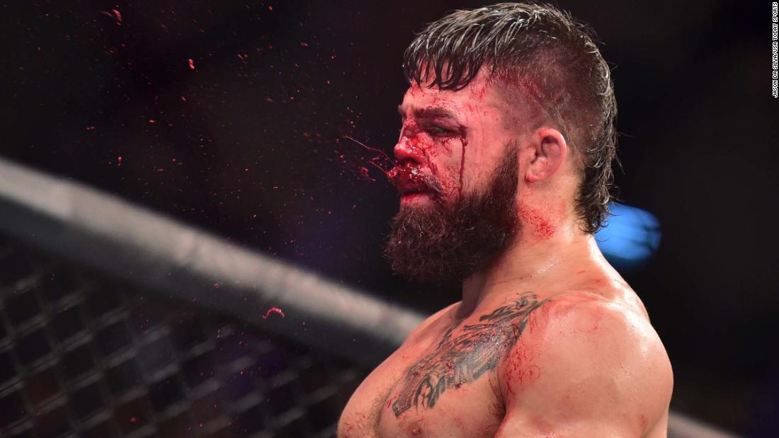 UFC fighter Mike Perry got his nose shattered
